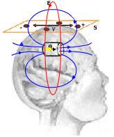 Brain Monitoring